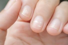 Witte vlekjes nagels
